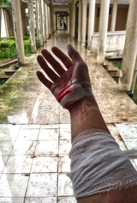 Motorcycle Accident Injuries in Vietnam /// Vinjatek