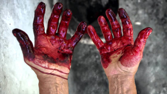The 'Self-Inflicted Defense' Method // Bloody Hands /// Vinjatek